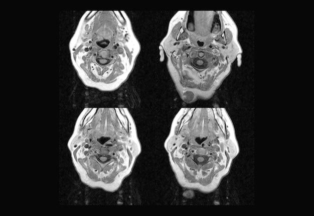 Imágenes de resonancia magnética y tomografía computarizada de la columna cervical profesional