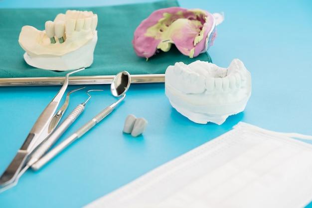 Implan dentado modelo soporte soporte puente implante y corona.