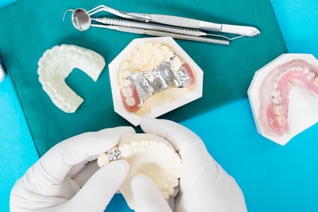 Implan modelo de soporte dental para fijar el puente de implan y la corona.