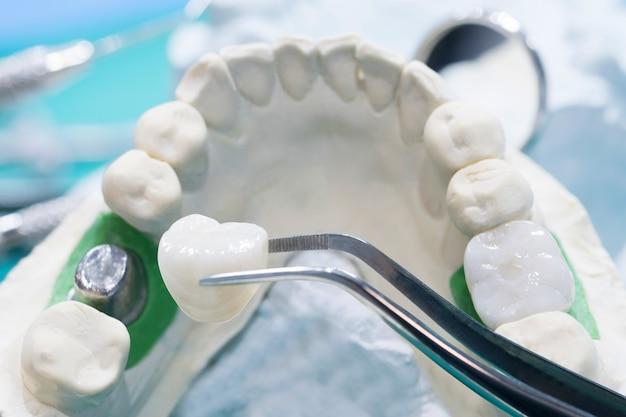Implan modelo de soporte dentario, puente fijo, implante y corona.