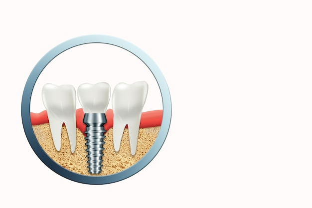 Implante dental, poste de encía inoxidable