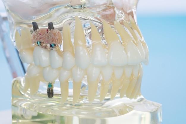 Implante y modelo de ortodoncia para que el alumno aprenda modelo de enseñanza mostrando los dientes.