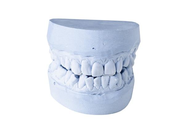 Impresión dental aislado sobre fondo blanco.