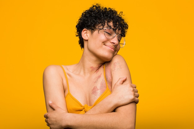 Joven mujer afroamericana con abrazos de marca de nacimiento de piel, sonriendo despreocupado y feliz.