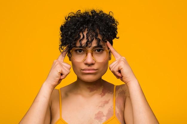 Joven mujer afroamericana con marca de nacimiento de la piel se centró en una tarea, manteniendo los dedos índice apuntando a la cabeza