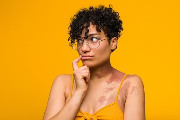 Joven mujer afroamericana con marca de nacimiento de piel mirando hacia los lados con expresión dudosa y escéptica.