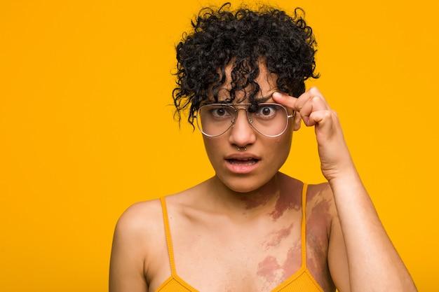 Joven mujer afroamericana con marca de nacimiento de la piel que muestra un gesto de decepción con el dedo índice.