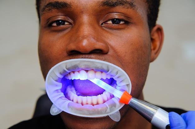 Lámpara ultravioleta de llenado de dientes