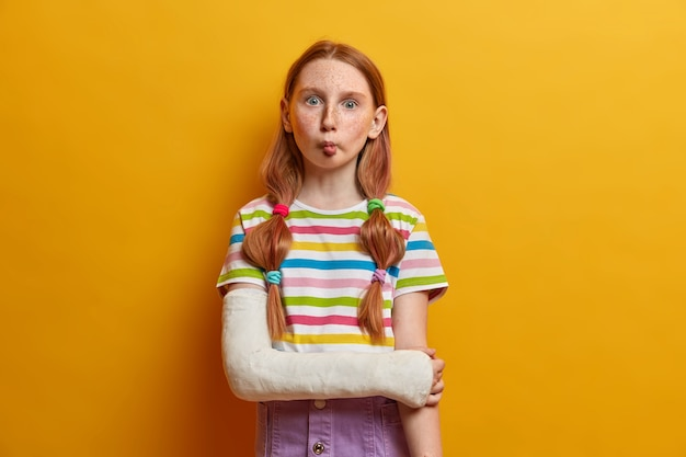Linda y divertida niña con ojos saltones, imita a los peces y mantiene los labios doblados, tiene un humor juguetón, no tiene miedo de mostrar emociones, hace tonterías, tiene un brazo roto, usa ropa informal de verano.
