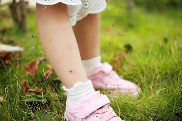 Linda niña asiática tiene erupción cutánea y alergia por picadura de mosquito y chupa sangre en las piernas mientras juega en el campo de hierba verde al aire libre