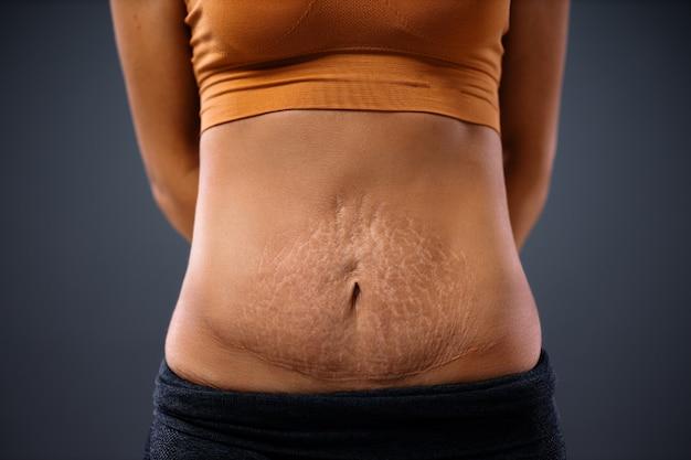 Mamá joven de pie con las manos detrás de la espalda y mostrando su barriga llena de estrías después del embarazo.