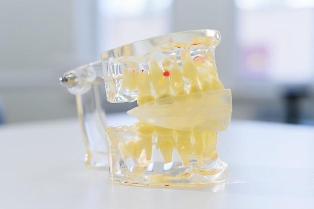 La mandíbula artificial transparente se encuentra sobre la mesa.