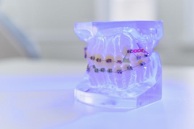 Las mandíbulas artificiales transparentes con tirantes yacen sobre la mesa