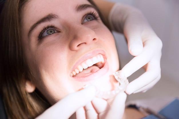 Mano del dentista usando guantes fijación alineador transparente a los dientes del paciente femenino en la clínica
