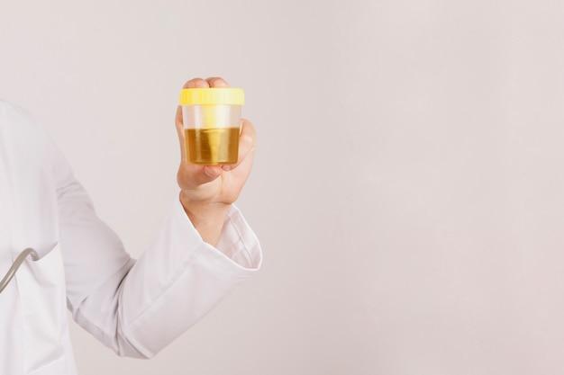 Mano del doctor sujetando una muestra de orina
