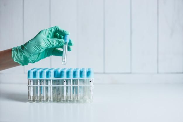 La mano de la enfermera médica en el laboratorio toma un tubo vacío de la bandeja