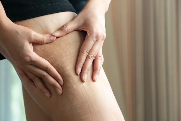 Mano femenina sostiene celulitis grasa y estrías en la pierna en casa, concepto de estilo de dieta de las mujeres
