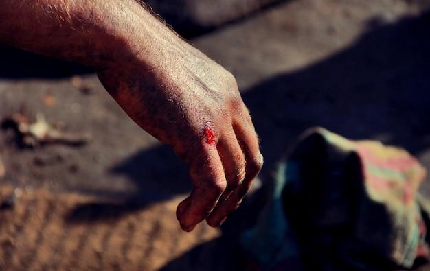La mano del hombre con tristeza sangrienta.