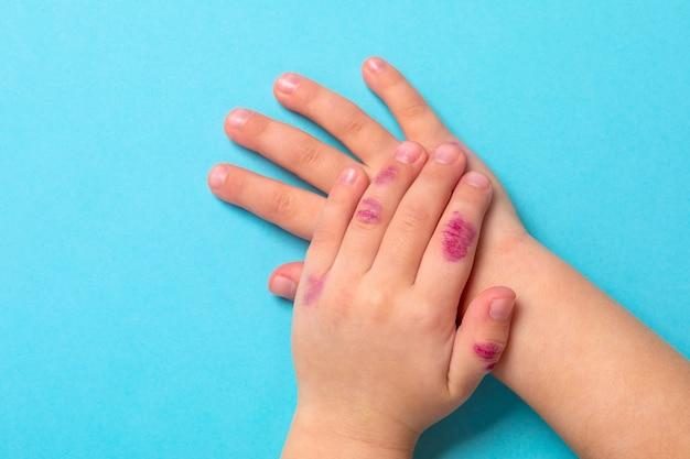 Mano de niños con dermatitis. eczema en mano aislado en el fondo azul