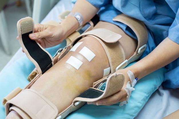 La mano del paciente asiático de la mujer se sienta en cama en hospital intenta llevar la ayuda de la rodillera después de hacer cirugía posterior del ligamento cruzado. concepto médico y de la atención sanitaria.
