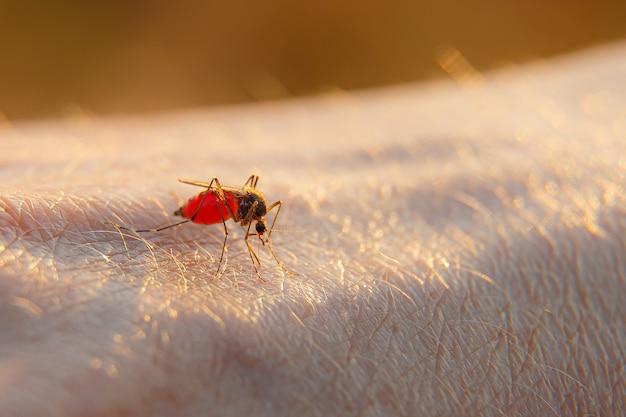 Una mano de la picadura de un mosquito. el mosquito bebe sangre del brazo.