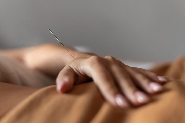 Mano de primer plano con aguja de acupuntura