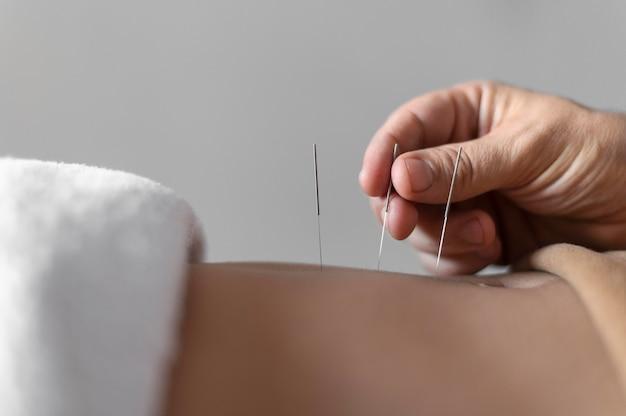 Mano de primer plano sosteniendo la aguja de acupuntura
