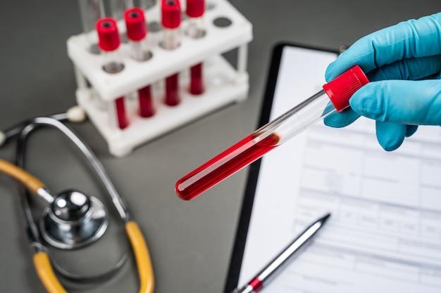 Mano sujetando el tubo de ensayo con sangre eady para la prueba