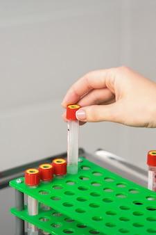 La mano del técnico de laboratorio o la enfermera toma el tubo de ensayo de sangre vacío de la rejilla en el laboratorio de investigación
