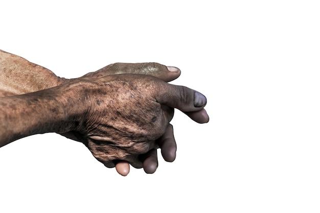 Manos y brazos viejos mayores dedos y uñas con venas. piel arrugada de persona anciana.