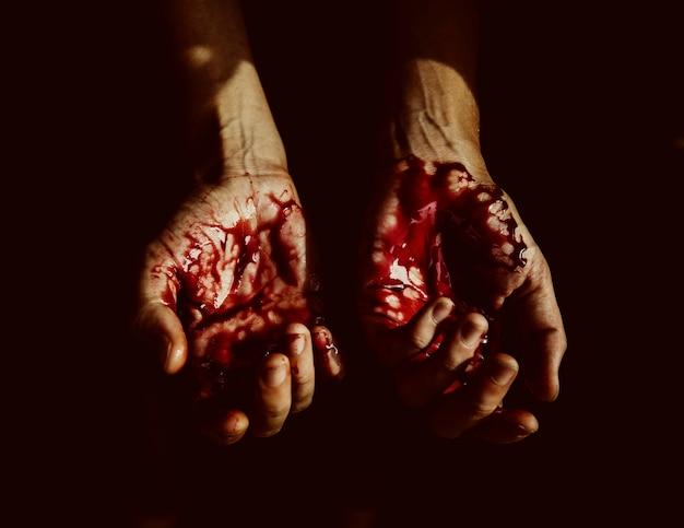 Manos ensangrentadas gravemente heridas