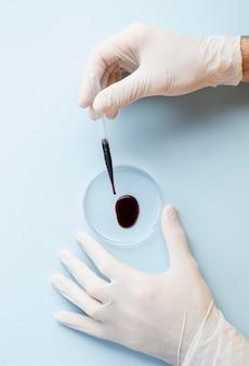 Manos con guantes y muestra de sangre.