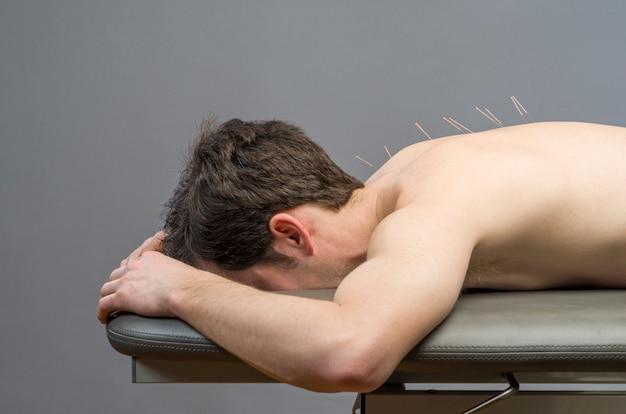 Medicina china haciendo acupuntura a hombre paciente.