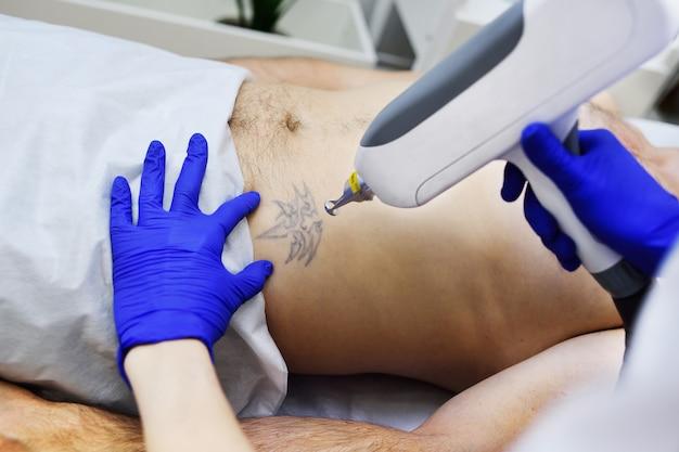 Médico cosmetólogo elimina tatuaje paciente hombre láser profesional.