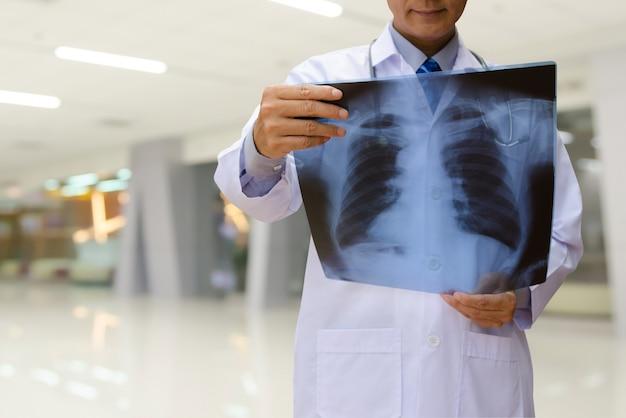 Médico examina la película de rayos x de tórax en el hospital