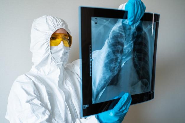 Médico mirando la imagen de rayos x de los pulmones en el hospital