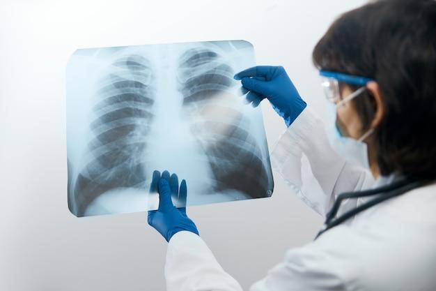 Médico mirando a través de una imagen de rayos x de los pulmones en busca de neumonía viral de un paciente con coronavirus