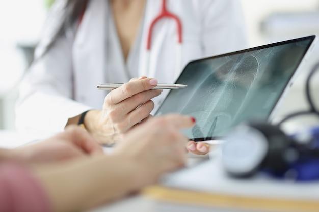 El médico muestra al paciente una radiografía de los pulmones en el concepto de neumonía e inflamación pulmonar de la tableta