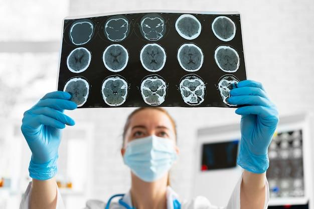 Médico de la mujer examina la resonancia magnética de la cabeza en el hospital de cerca
