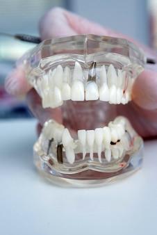 El médico ortodoncista sostiene en su mano un modelo de dientes con implantes.