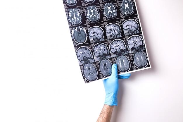 Médico sostiene imagen de resonancia magnética