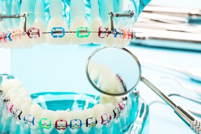 Modelo de ortodoncia y herramienta de dentista - modelo de dientes de demostración de variedades de ortodoncia
