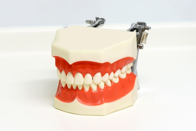 Modelo dental de dientes superiores e inferiores.