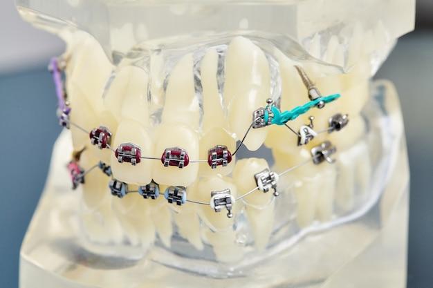 Modelo dental de ortodoncia de dientes humanos con implantes, aparatos dentales