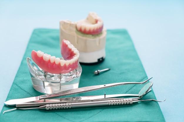 Modelo de dientes que muestra un modelo de puente de corona de implante / modelo de enseñanza de estudio de dientes de demostración dental. Foto Premium