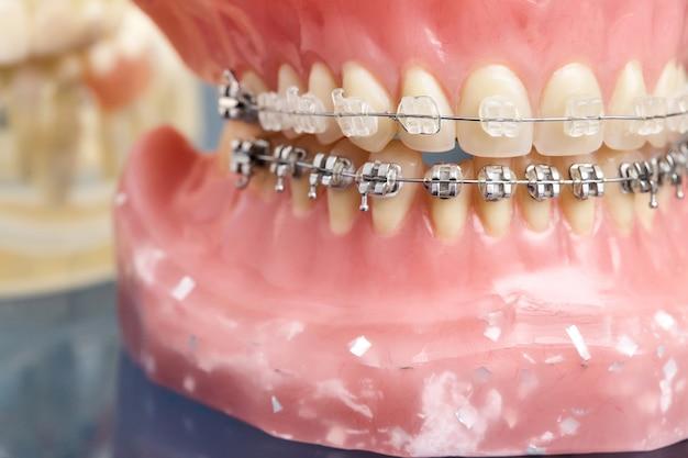 Modelo de mandíbula humana con dientes y aparatos dentales con cable