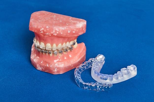 Modelo de mandíbula humana o dientes con aparatos dentales metálicos