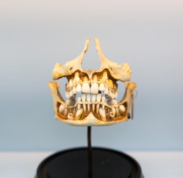 Modelo médico de la mandíbula humana en el soporte. aprendizaje de la estructura de la boca humana.