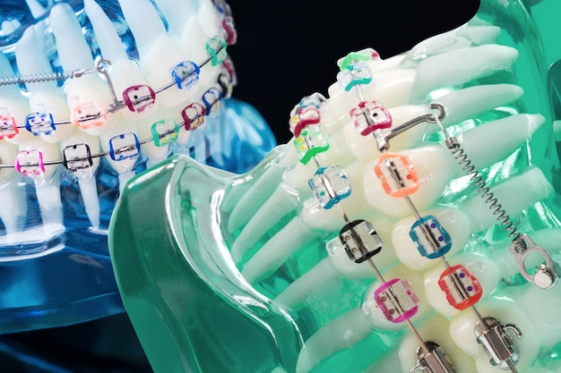 Modelo de ortodoncia y herramienta de dentista: modelo de demostración de dientes de diversas variedades de brackets o brackets de ortodoncia