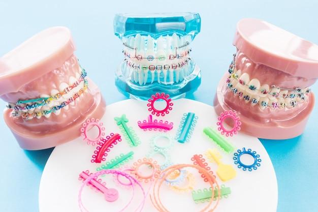 Modelo de ortodoncia y herramienta de dentista: modelo de demostración de dientes de variedades de brackets o brackets de ortodoncia